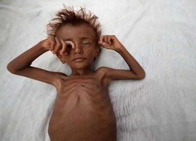الاطفال يموتون في اليمن